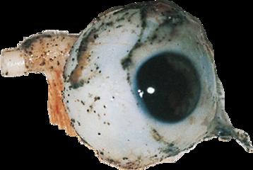 eyes morbilde trashedit freetoedit